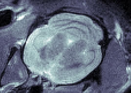 T1 weighted coronal view of a rat brain